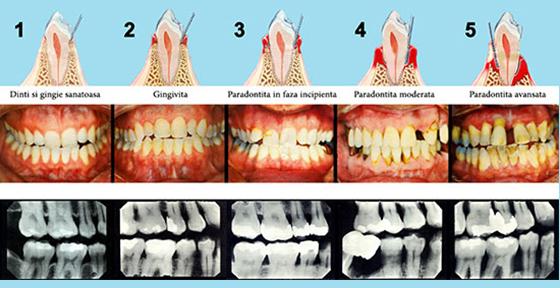 parodontoza560
